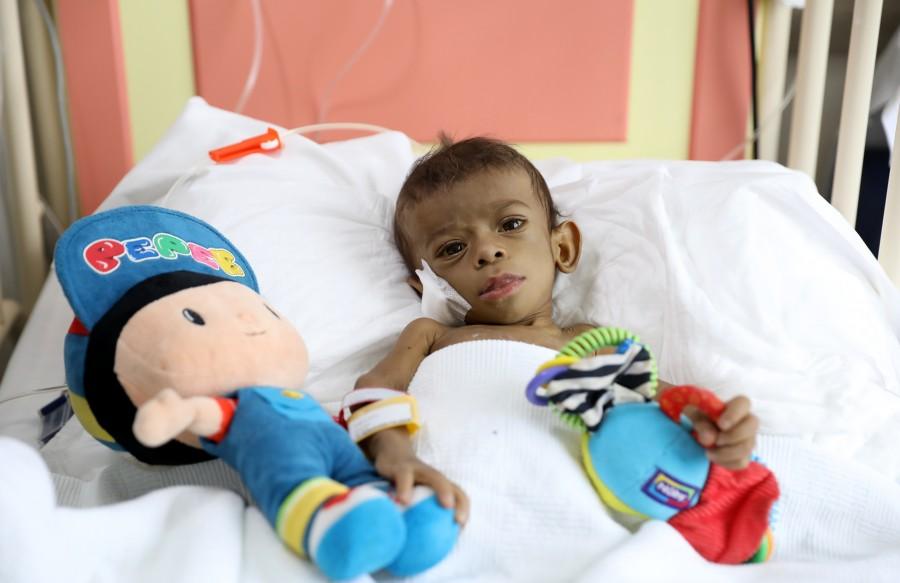 BUÜ Hastanesi'nden sınır ötesi karaciğer operasyonu